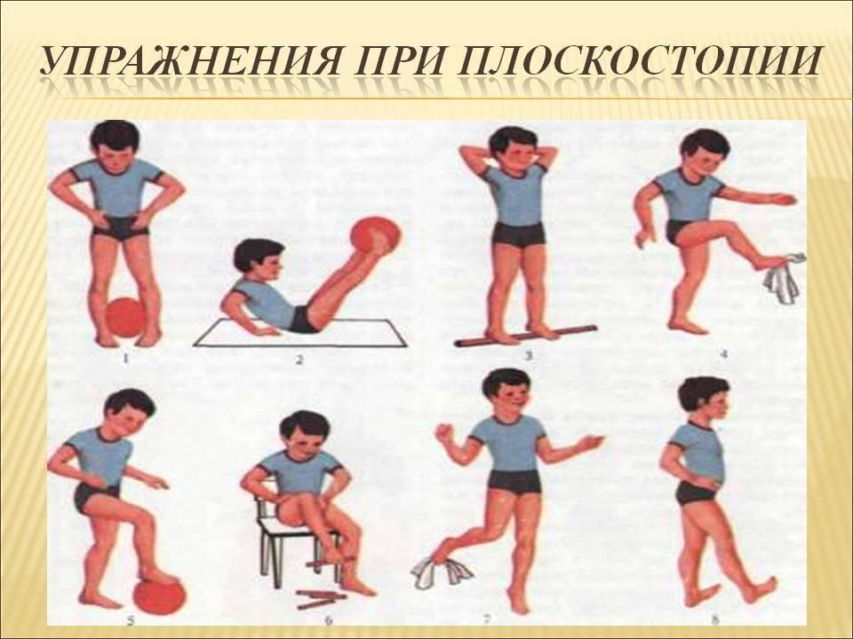 Профилактика и лечение плоскостопия